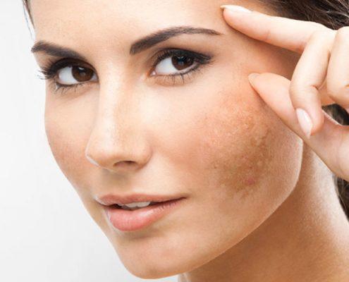 trattamenti macchie pelle | marycenter | centro estetico | cantù | como